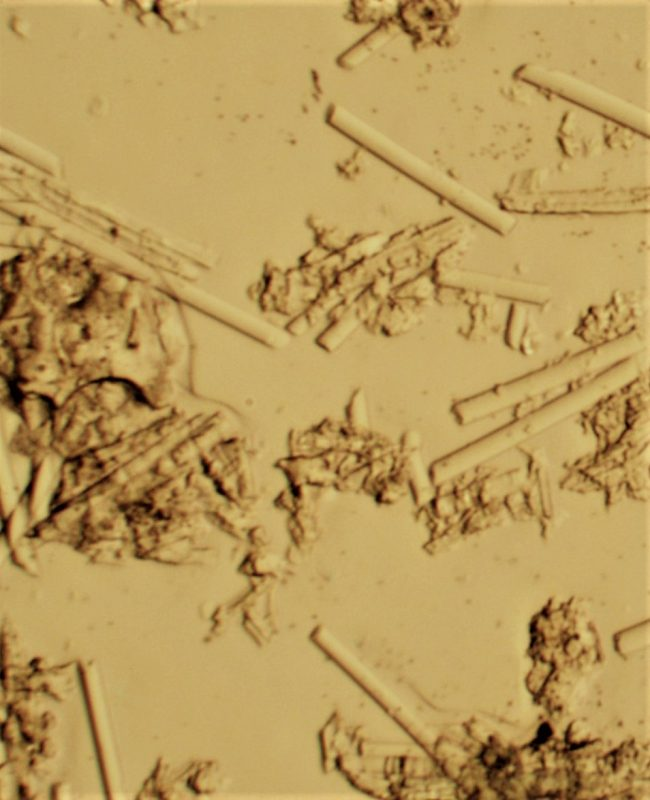 Fiberglass test kit microscope view of fiberglass fragments